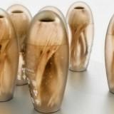 imagem mostrando as próteses de olho biônico similares a projéteis em p´´e com algo parecido com uma córnea na parte de cima